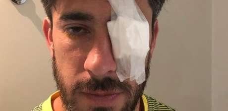 Pablo Perez sofreu ferimentos no olho após ataque; imagem foi divulgada pelo médico do Boca Juniors