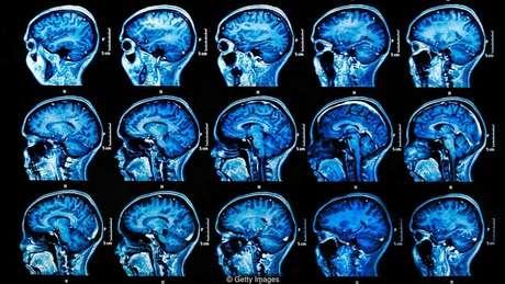 Períodos de estresse podem reativar o vírus da herpes, e isso pode levar a danos cerebrais no longo prazo
