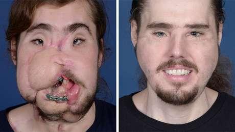 Cameron foi salvo com enxertos após a tentativa de suicídio (esq.) e conseguiu retomar sua vida após o transplante de rosto (dir.)