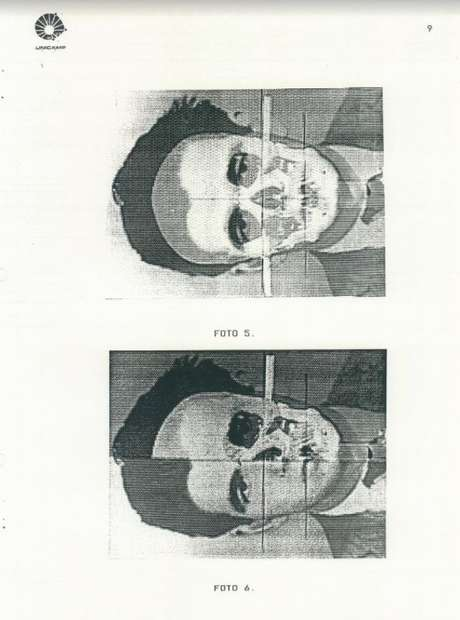 Laudo de identificação de Dimas Casemiro por grupo liderado pelo legista Badan Palhares, em 1991
