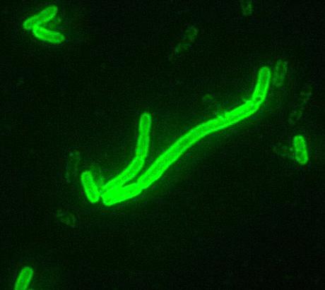 A doença é causada pela bactéria Yersinia pestis, transmitida por meio de pulgas de ratos.