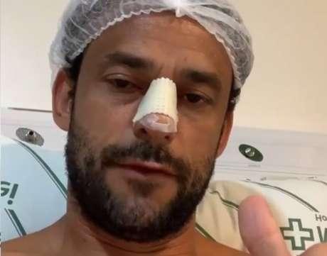 Fred operou o nariz após sofrer fratura em choque com o goleiro rival em jogo-treino do Cruzeiro.