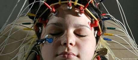 Pesquisa monitorou as atividades cerebrais de pacientes que tiveram seus crânios abertos para procedimentos cirúrgicos