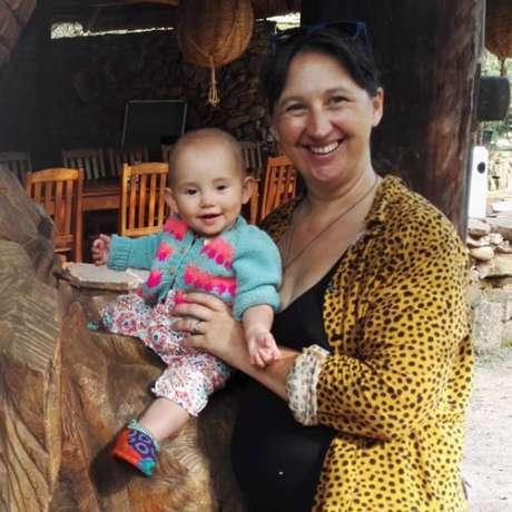 Fintry, a filha de Claire, nasceu em julho de 2018 sem sintomas de Síndrome de Turner