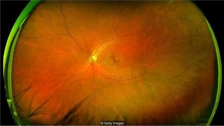 Os padrões de vasos sangüíneos na retina na parte posterior do olho revelam se você está correndo risco de sofrer um ataque cardíaco