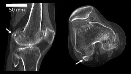 A seta indica onde está a fabella, atrás do joelho