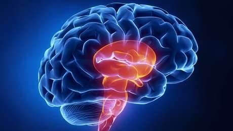 O implante é inserido diretamente no cérebro, para estimular canais auditivos