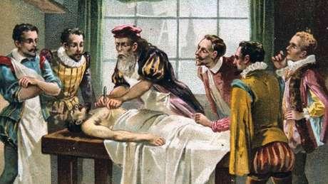 O médico militar francês do século 16 Ambroise Pare é considerado por muitos o pai da cirurgia moderna