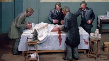 Parar o sangramento foi o primeiro grande desafio dos cirurgiões para reduzir o número de mortes em operações