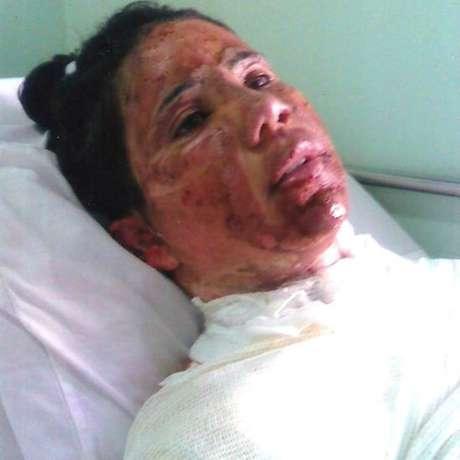 Alexandra passou por três hospitais nos 21 dias em que ficou internada após a queimadura