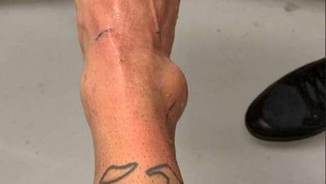 Neymar divulga inchaço do tornozelo direito