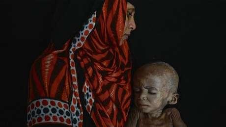 Enquanto imagens de crianças etíopes desnutridas estamparam jornais durante a década de 1980, as vítimas da fome no Iêmen foram amplamente ignoradas