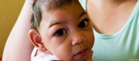 Entre 2015 e 2016, cerca de 3 mil crianças nasceram com microcefalia, a maioria delas na empobrecida região Nordeste