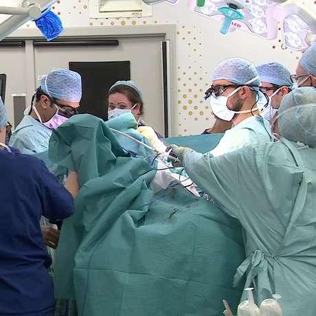 As meninas tiveram de passar por três cirurgias para serem separadas