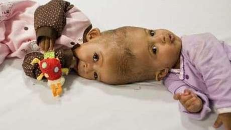 Rital e Ritaj Gaboura, gêmeas do Sudão, tinham 11 meses de idade quando foram operadas