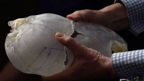 Modelos 3D dos crânios de Safa e Marwa foram criados para ajudar na preparação das cirurgias