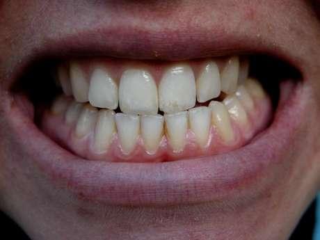 O principal sintoma do bruxismo é ranger os dentes enquanto dorme ou então cerrar e apertar dentes os dentes demais na hora do seu sono.