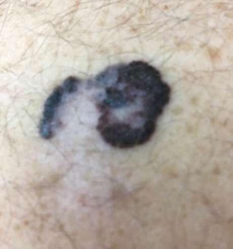 Melanoma é o tipo de câncer de pele menos comum e mais letal