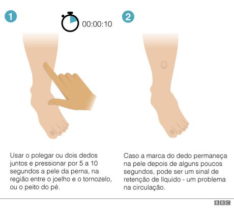 Ilustração mostra movimentos que devem ser feitos no teste de sinal de cacifo