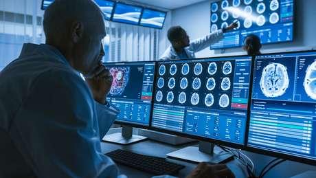 Neurologistas no centro de pesquisa trabalham na cura de tumor de cérebro (imagem ilustrativa)