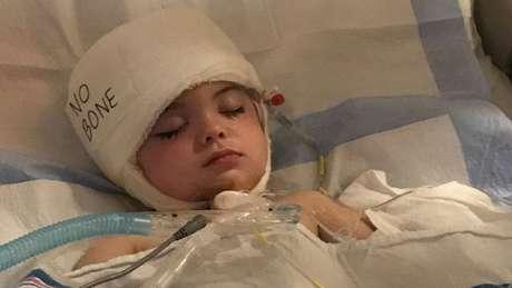 A médica que atendeu Joseph explicou que ele sofreu um sangramento intracraniano devido a uma malformação arteriovenosa cerebral
