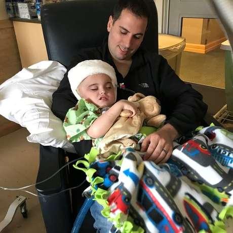 Os médicos tiveram de usar um enxerto de pele de cadáver para cobrir a área inchada do cérebro de Joseph