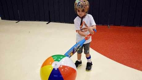 Joseph ainda usa um capacete especial para proteger a cabeça, mas já brinca com outras crianças e pratica esportes
