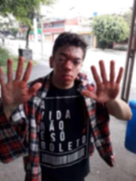 Ator Marcello Santanna afirma que foi agredido por um motorista de ônibus do transporte público de São Paulo; SPTrans afirma que repudia violência e vai colaborar com as investigações