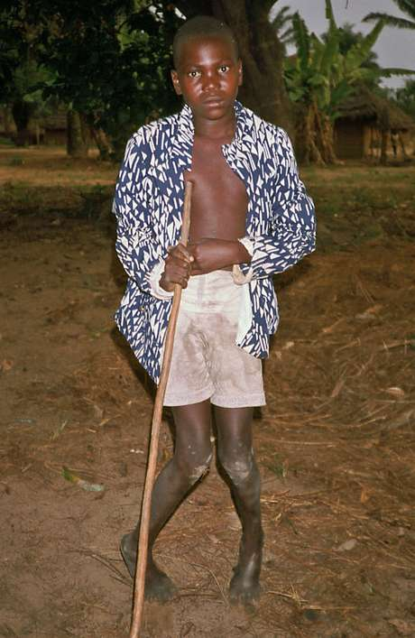 Menino com konzo, fotografado no Zaire (atual República Democrática do Congo) em setembro de 1986