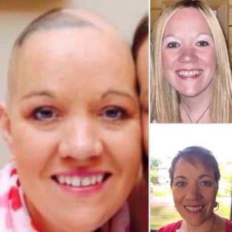 Suzanne antes de adoecer (em cima, à direita), durante o tratamento (à esquerda) e recentemente (em baixo, à direita)