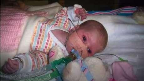 Lilly passou os primeiros três meses de vida no hospital