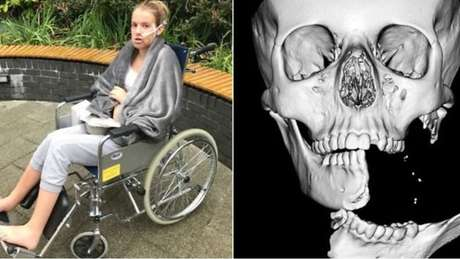 Emily Eccles fraturou o lado esquerdo da mandíbula quando andava a cavalo