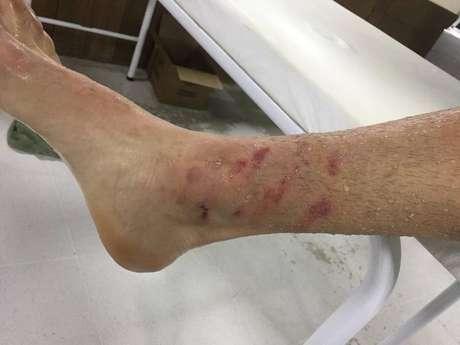 Gustavo Gómez ficou com a marca das chuteiras do adversário na perna.