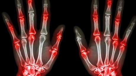 Os pesquisadores asseguram que a termografia identificaria melhor os sinais da artrite em comparação a outros métodos, como o ultrassom