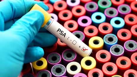 Os exames de sangue, por si só, não são confiáveis.
