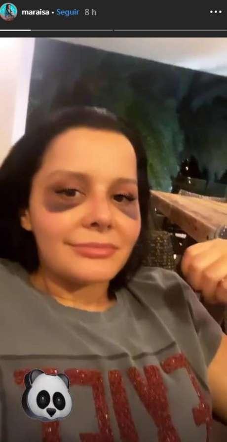 Maraisa faz piada com a própria aparência após cirurgia plástica no nariz