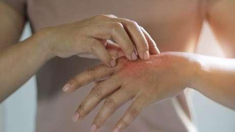 """Pessoas com dermatilomania podem beliscar ou arranhar manchas, sardas, marcas ou cicatrizes para """"suavizar"""" ou """"ajeitá-las"""""""