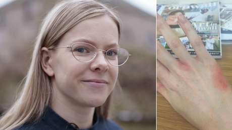 Phaedra Longhurst sofre ferimentos como os da foto da mão quando coça a pele compulsivamente