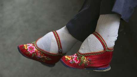 A tradição chinesa de enfaixar os pés — que acabava enventualmente deformando os membros — se estendeu por quase mil anos até ser proibida