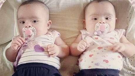 Exame feito quando Helena e Heloísa tinham poucas semanas de vida apontou que as duas têm síndrome de Down