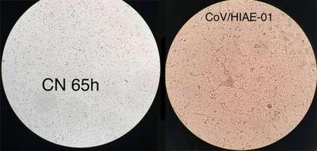À esquerda, célula humana não infectada; à direita, coronavírus multiplicando-se em célula cultivada em laboratório