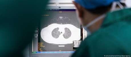 """""""Em alguns pacientes, a função pulmonar pode cair de 20% a 30% após a cura"""", afirma médico de Hong Kong"""