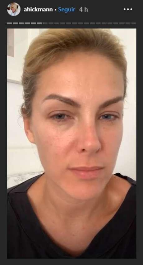 Com sintomas semelhantes aos provocados pelo novo coronavírus, Ana Hickmann mostrou que está com olhos inchados e boca ressecada.