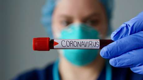 Foi com a chegada do vírus a outros países depois da China que tivemos noção do tamanho do problema, segundo cientista