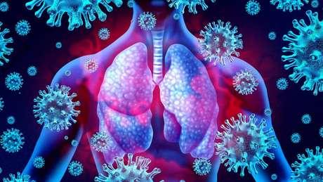Equipe de pesquisadores da Inglaterra vai testar se o ibuprofeno contribui no tratamento de sintomas respiratórios severos causados pelo coronavírus