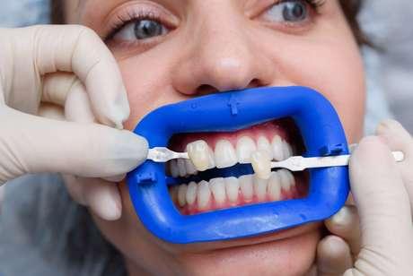 Faceta Dentária