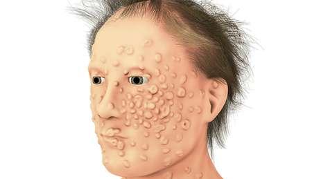 Muitos dos pacientes de varíola ficavam com cicatrizes terríveis no rosto e no corpo