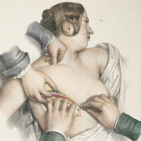 Durante o século 20, a mastectomia radical era um procedimento comum para pacientes com câncer de mama
