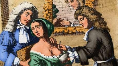 Mastectomias foram realizadas ao longo da história.