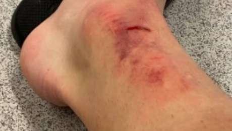 Carlos Augusto, do Corinthians, posta foto de tornozelo cortado e inchado após lance em que jogador do Mirassol foi expulso